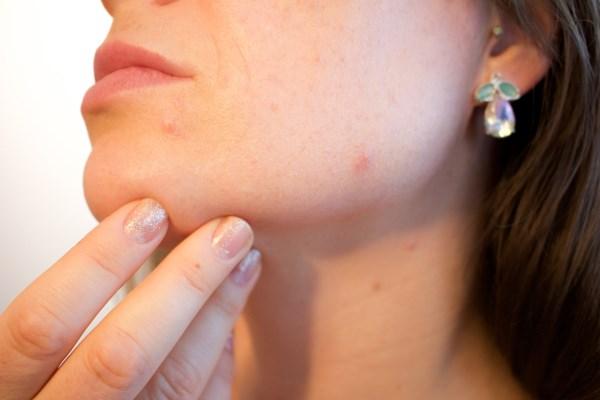 L'acne è un segnale che rivela la presenza di un problema interno